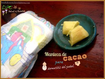 Manteca de cacao para dermatitis del pañal